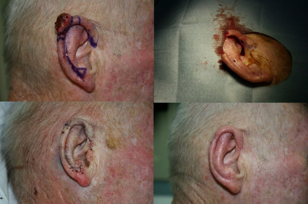 Surgical Treatment of Skin Cancer – Dr Con Pappas